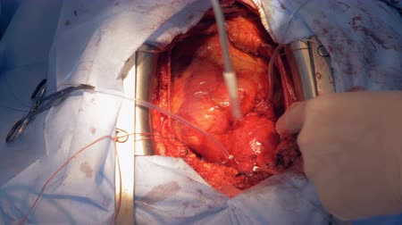pulsate : Real heart beats through open chest during surgery. Stock Footage