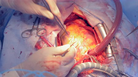 naživu : Real heart beating during real surgery. Cardiac surgery.