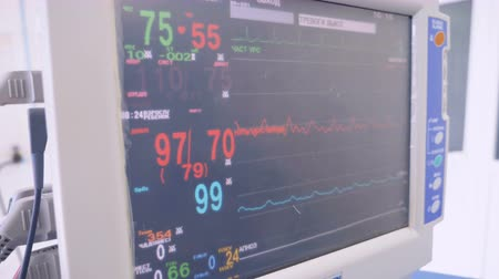 vital signs : Modern medical equipment with patient vital parameters in clinic.