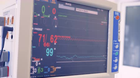 heart monitor : Modern medical equipment with patient vital parameters in clinic.