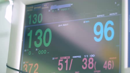 electron : Medical monitor at a clinic, close up. Special monitors shows heart rate and pulse. Stock Footage