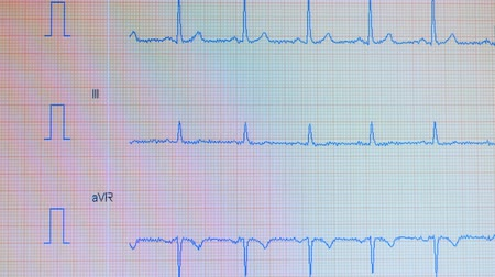 vital signs : heart pulse line. Electrocardiography process showed on a screen. Stock Footage