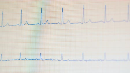 vital signs : ECG monitor shows healthy heart beat.
