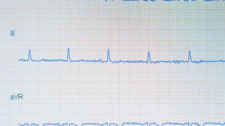 vital signs : EKG graphic. ECG monitor shows healthy heart beat Stock Footage