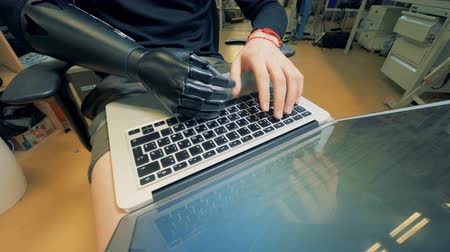 робот : Disabled person works with a laptop, close up.