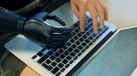 amputee : One man types on his laptop, using his prosthetic hand. 4K. Stock Footage