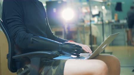 articulação : A handicapped person uses a laptop to work, typing on a keyboard, wearing his prosthesis. 4K. Vídeos