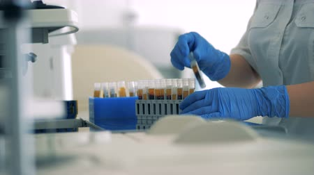 vérplazma : Close up of lab workers hands relocating probes with blood