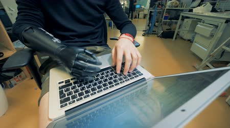 physically : A man with prosthetic arm is typing on the keyboard