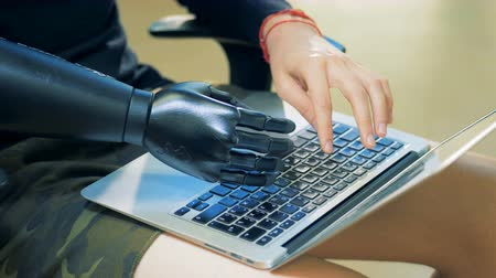 končetina : A man is typing on a laptop keyboard with his prosthetic and natural hands. Cyborg concept.