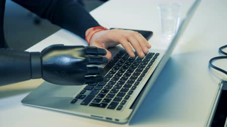physically : Man prosthetic and normal hands are typing on the keyboard. Stock Footage