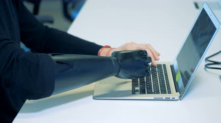 physically : A man with a Robotic cyborg arm concept. is typing on a computer Stock Footage