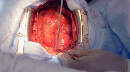 acil : One surgeon uses scissors and a medical needle to sew patients heart. 4K. Stok Video