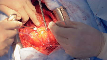 coronary : Surgeons suturing patients heart, close up.