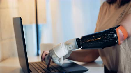 hátrány : A lady is typing on her laptop with a healthy and a robotic arms Stock mozgókép