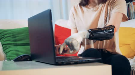 hátrány : A lady with a bionic hand is typing on her laptop