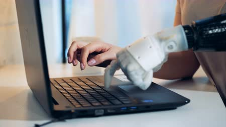 amputee : Person uses robotic hand to type on a laptop, close up. Stock Footage