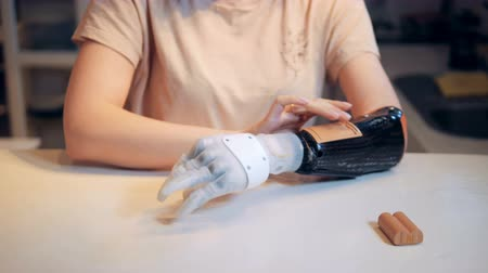 energized : Battery is getting inserted into a prosthetic hand by a woman