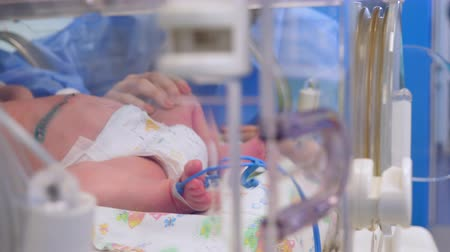 intensive care unit : New-born baby with stitches is lying in the incubator