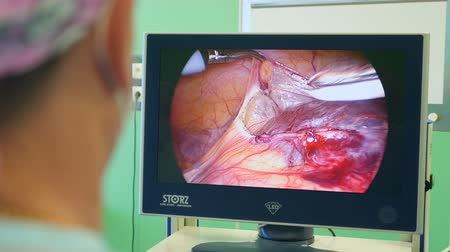 cuidados intensivos : Course of surgery is being shown on a screen Archivo de Video