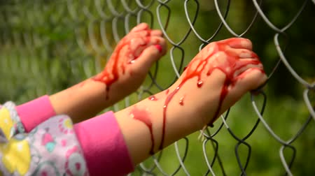unicef : Child asks for help in blood. Violence against children. Child in the blood of the fence, asks for help Stock Footage