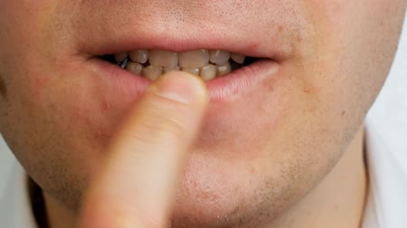 перегружены : stressed man by teeth gnaws his nail on finger, close up