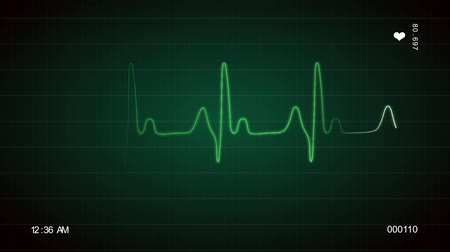 An ECG screen is displaying the moving waveform of a beating hart.