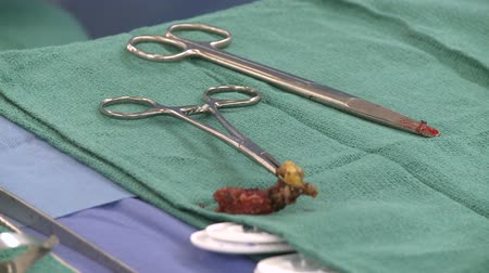 bandeja : Views of Heart Surgery - For Editorial Use Only Stock Footage