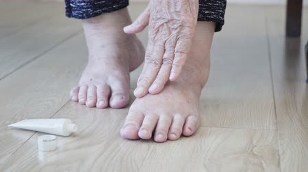 melisa : Elderly woman putting cream on swollen feet Stok Video