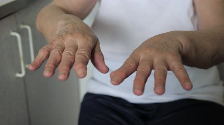трепет : Close-Up Of Trembling Hands In The Wrinkles Of An Old Woman With Tremor Illness