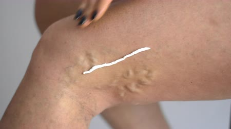 woman applying cream on varicose veins legs health medicine problem copy space