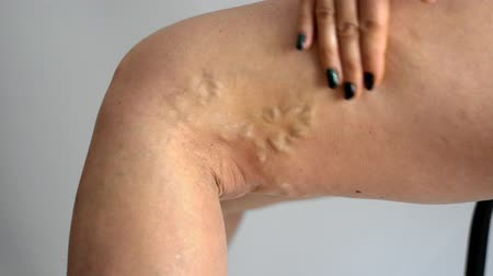 Varicose veins on a female legs