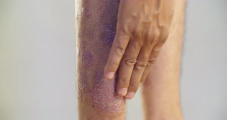 psoriasis : Psoriasis that knee on gray background. 4K Stock Footage