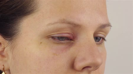 pus : Young woman with hordeolum disease in the eye. Stock Footage