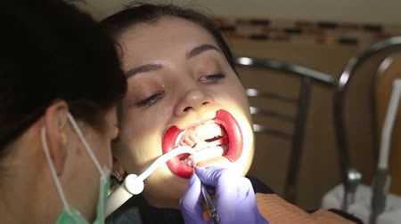 painless : Young woman with an expander in mouth at the dental clinic. Application of protective whitening gel to the teeth.