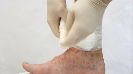 bandage : Human skin disease. Persons hands swathe with bandage, around scars, ulcers and age spots, possibly due to varicose veins on his leg.