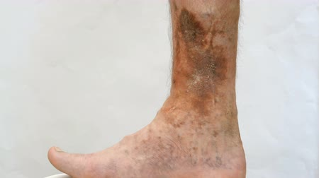lesion : Human skin disease. Person s foot that is affected by dermatological skin disease with scars, ulcers and pigment spots. Perhaps this is varicose veins on the leg.