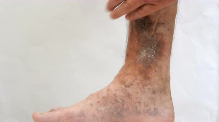 lesion : Illness of the human skin. A person s hands touch and scratch scars, ulcers and age spots, possibly after varicose veins on his leg. Stock Footage