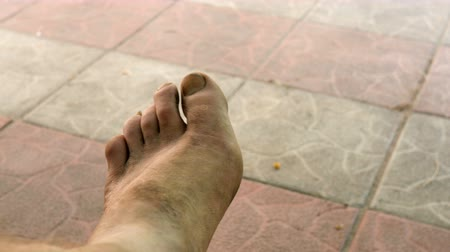 toes : Bare foot of human with unhealthy skin, sways against the background of paving slabs. Selective focus.