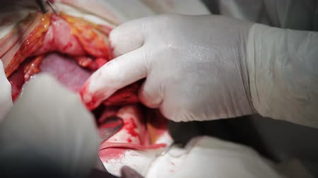 cesarean : Operation for cesarean section with new born infant in operating theater.