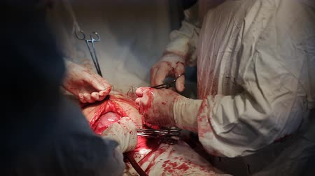 diz : Surgeon operating patient, close up hands. Surgical cut, knee replacement.