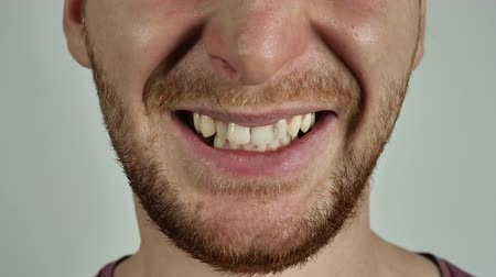 irritate : part of face caucasian man. Unrecognizable male with beard anger. Person showing grin