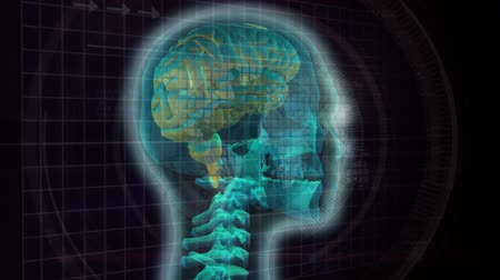 effects on brain : Digital animation of a rotating 3d human face showing the green brain and spinal column. Panning view of the world in bitmap, life line, and focusing camera concept on a black background Stock Footage