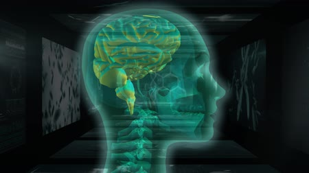 rezonans magnetyczny : Animation of 3d translucent green human head and brain rotating in front of magnetic resonance imaging scan screens and DNA strands spinning in the background. Global medicine science and research network digitally generated image.