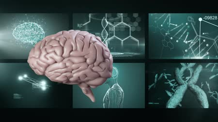 rezonans magnetyczny : Animation of 3d pink human brain rotating in front of magnetic resonance imaging scan screens and DNA strand spinning in the background. Global medicine science and research network digitally generated image.