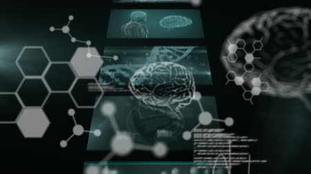 rezonans magnetyczny : Animation of 3d white data processing and human brain in front of screens with scientific data and DNA strand spinning in the background. Global medicine science and research network digitally generated image.