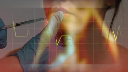 seringa : Animation of heart beat rate reading and data on a grid moving over close up of female patient having her lips injected. Universal aesthetic medicine concept digital composite. Stock Footage