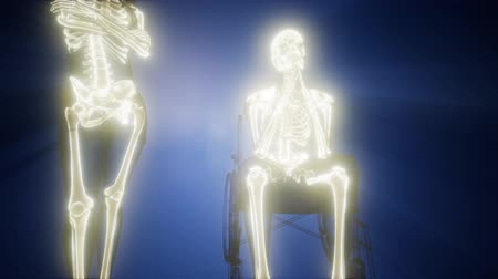 artrit : man in wheelchair with visible bones Stok Video