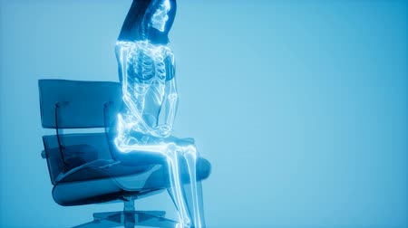 inflamed : Human Skeleton Radiography Medical Scan