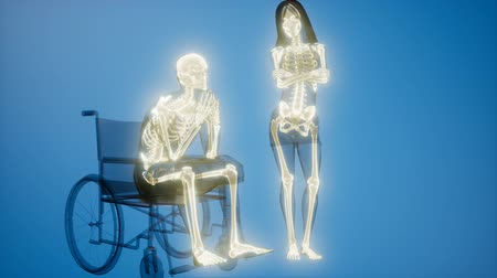 costela : man in wheelchair with visible bones Stock Footage